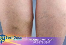 Dr. McQuaid Risks of Not Treating Vein Problems