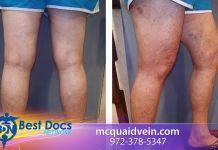 Vein Patient Testimonial | Joyce | Dr. Mark McQuaid