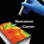 Cancer Lightens Up